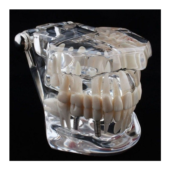 Combo Offer - All In One + Orthodontic Model